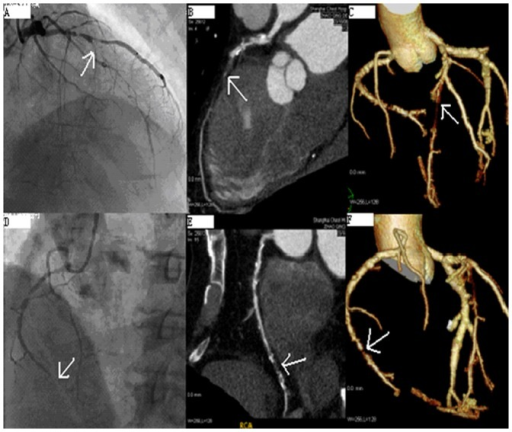 Representative Reconstructed Images of CTO Lesions at the Left Anterior Descending Coronary Artery (LAD) and Right Coronary Artery (RCA).1A, 1D: Coronary angiography (CAG) image; 1B, 1E: Multiplanar reconstruction images; 1C, 1F: Three-dimensional volume rendering (Tree) image.