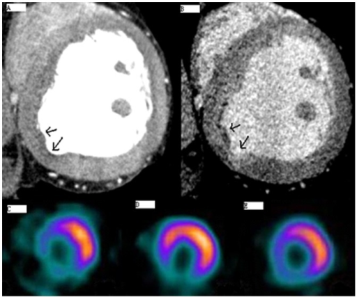 Representative Myocardial Perfusion Images of the Left Anterior Descending Coronary Artery (LAD) and Right Coronary Artery (RCA) using both MSCT and SPECT Examination.3A: MSCT early scanning; 3B: MSCT late scanning; 3C: Stressed thallium-201 (201TI)-SPECT imaging; 3D: 99mTc-MIBI imaging; 3E: 201TI-SPECT late resting image.