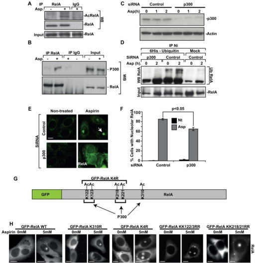 p300 is required for the ubiquitylation and nucleolar translocation of RelA. (A,B) SW480-GFP-RelA cells were exposed to 0 (−) or 5 mM (+) aspirin (Asp, 16 h), RelA was immunoprecipitated (IP), then recovered proteins were analysed by immunoblot (WB) for (A) acetylated RelA (AcRelA; anti-AcRelAK310 antibody) or (B) p300. Stripped gels were re-probed for RelA. Input levels of protein are shown. Rabbit IgG acts as a control. (C–F) SW480 cells were transfected with control (scrambled) or p300 siRNA, then treated with aspirin (C,D, 10 mM, times indicated; E,F, 5 mM, 16 h). (C) Immunoblot for p300. (D) Cells were co-transfected with His6–ubiquitin. Ubiquitylated RelA was analysed in lysates using nickel (Ni) agarose bead precipitation and immunoblotting for RelA. (E,F) Immunomicrographs demonstrating the localisation of RelA. The arrow indicates a nucleolus. The number of cells showing nucleolar RelA was determined in >200 cells from more than five fields. Data shown are the mean±s.e.m. n = 3. *P<0.05 (Student's t-test). (G,H) Diagram showing p300 acetylated lysine residues that were mutated to arginine residues. Live-cell imaging demonstrates nucleolar localisation of mutants. Scale bar: 10 µm.