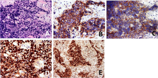 Hematoxylin-eosin staining (A) and immunohistochemical staining for Ep-CAM/Ber-EP4 (B), CD117/c-Kit (C), Epstein–Barr virus-encoded ribonucleic acid in-situ hybridization (D), and Ki-67 (×400 magnification) (E).