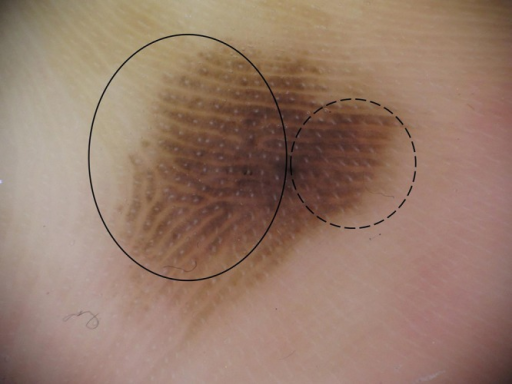 Dermatoscopy of acral lentiginous melanoma located ALM on the left sole near the fifth toe. The non-loaded area showed the typical parallel ridge pattern and regular white dots corresponding to the eccrine pores on the center of the ridges. The loaded area showed a more homogeneous brown pigmentation and a short negative fibrillar pattern was observed. (Copyright: ©2014 Watanabe et al.)