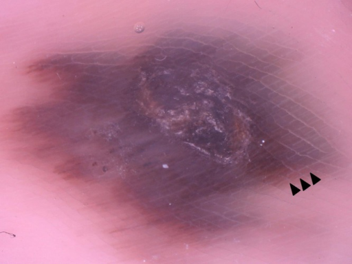 Dermatoscopy of acral lentiginous melanoma on the loaded area, case 1. On the gray-blue to dark brown structureless background, a negative fibrillar pattern was conspicuous at the 12 to 6 o'clock position (black arrowhead). (Copyright: ©2014 Watanabe et al.)