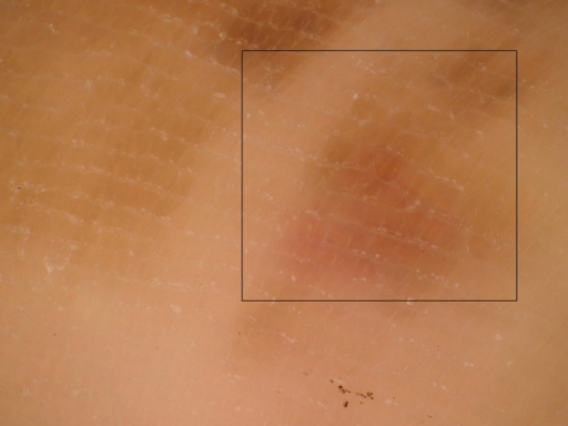 Dermatoscopy of acral lentiginous melanoma ALM on the loaded area, case 2. A negative fibrillar pattern was observed on the light brown background. (Copyright: ©2014 Watanabe et al.)