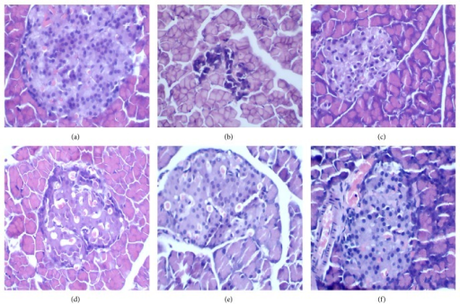 The pathological examination result of pancreatic islets in STZ-induced diabetic rats. (a) Pancreatic islet from a normal mouse. (b) Pancreatic islet from STZ-induced diabetic rats with no treatment, severe degranulation of most β-cells in this islet. (c) and (d) Pancreatic islet from STZ-induced rats treated with Met and Glic, respectively. (e) and (f) Pancreatic islet from STZ-induced rats treated with TNTL (1.26 and 0.63 g/kg b.w., resp.).