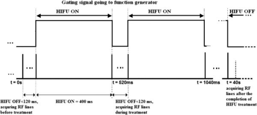 Timing diagram of HIFU exposure and data acquisition.