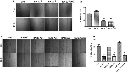 (A) MCF7 cells were treated with retinoic acid (RA) in different concentrations (10−7/10−5 M) and cell migration was imaged after 72 hrs. (B) Gap closure was quantified with the use of NIH image J software. *P < 0.05 versus Con. (C) T47D cells were treated with RA (10−6 M) and the synthetic agonist retinoids, selective for RARα Agonist (BMS753), RARβ Agonist (BMS453) and RARγ Agonist (BMS961), and the synthetic antagonist retinoids selective for RARα (BMS195614) plus RA (10−6 M). All retinoids were incubated at 10−6 M for 72 hrs. Cell migration was imaged after 72 hrs. (D) Gap closure was quantified with the use of NIH image J software. *P < 0.05 versus Con. These experiments were performed in triplicates and representative images are shown.