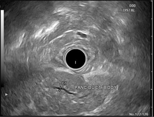 EUS demonstrating a diffusely enlarged pancreas, especially in the head and neck region, with normal, non-dilated pancreatic duct measuring 1.6 mm, and no focal mass lesion.
