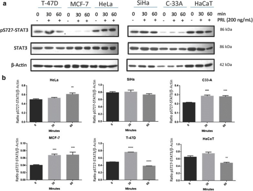 Prolactin induces STAT3 phosphorylation in cervical cancer cell lines by western blot. a HeLa, SiHa and C-33 A. Overexpressing PRLR breast cancer cell lines: MCF-7 and T-47D. Non-tumorigenic immortalized keratinocytes: HaCaT. All the cells were treated under three conditions: no stimulus, 30-min stimulus and 60-min stimulus with PRL (200 ng/mL). b Induction of pS727-STAT3 by western blot, comparisons were made versus non-stimulated cells, *p < 0.05, **p < 0.01, ***p < 0.001, ****p < 0.0001