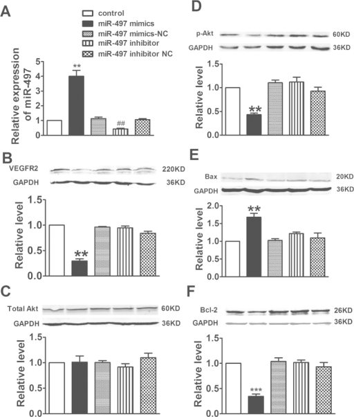 Up-regulation of miR-497 mitigated VEGFR2 level and increased the levels of apoptosis related proteins in human umbilical vein endothelial cells (HUVECs).(A) Using qRT-PCR analysis, the expression of miR-497 was increased in miR-497 mimic treatment and decreased in miR-497 inhibitor treatment in HUVECs. Data were expressed as mean ± SEM, n = 3; **P < 0.01 vs. control group, ##P < 0.01 vs. control group. (B–F) Protein levels of VEGFR2, Total Akt, p-Akt, Bax, and Bcl-2 were detected by western blotting assay. Data were expressed as mean ± SEM, n = 3; **P < 0.01 or ***P < 0.001 vs. control group.