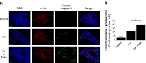 FVIIa promotes cytokine-induced caspase-3 cleavage in primary human beta cells. (a) Untreated or FVIIa pre-treated (10 nmol/l, 6 h) human islets were stimulated with a cytokine mixture of IL-1β, TNF-α and IFN-γ (Cyt.) for 72 h, then mildly dispersed using trypsin to generate single islet cells. Cells were stained with DAPI (blue), insulin antibody (red) and cleaved caspase-3 antibody (green) and visualised by fluorescence microscopy. Islets from five different donors were used and images show results from one representative donor. Scale bar, 50 μm. (b) Cells (~2,000/group) were counted and the number of cells double-positive for insulin and cleaved caspase-3 are depicted in the graph. Results are means ± SEM from five experiments. *p < 0.05 for indicated comparison, using paired Student's t test
