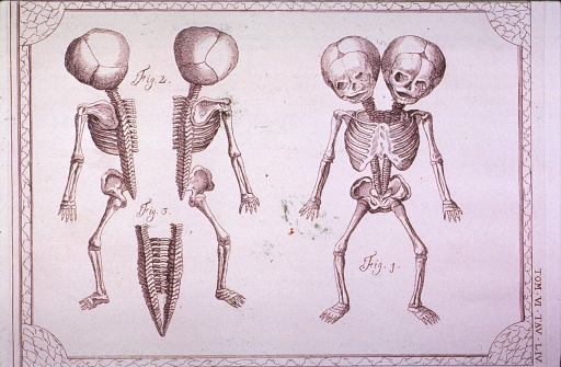 <p>Two views showing the front and back of the skeleton of conjoined twins.  These show their two heads and two spines, and their common chest cavity, pelvis and limbs.  A third view shows, in detail, the joining point of the two spines.</p>