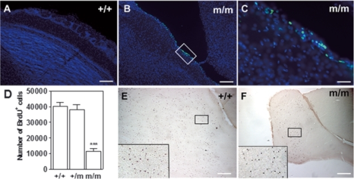 TUNEL staining and cell proliferation in the OB. (A) +/+ OB showing lack of TUNEL staining compared with (B) TUNEL-positive staining in the m/m mice shown in higher-power magnification in (C) Note, staining is highest in the GL where architecture is distorted (see also Fig. 1). (D) There is a decrease in bromodeoxyuridine (BrdU) staining in the OB of m/m mice compared with +/+ or +/m 21 days after a single injection of BrdU (***P < 0.001 versus +/+, +/m; n = 6). (E) BrdU staining of OB in +/+ mice (magnification 5 ×). The boxed region in (E) is shown in the corner of (E). (F) BrdU staining in OB of m/m mice (magnification 5 ×), the boxed region in (F) is shown in the corner of (F). Note, the difference in size of the OB at 5 × magnification. Scale bars: 100 µm (A and B); 20 µm (C); 500 µm (E and F).