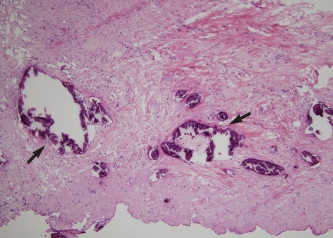 The histologic examination of the surgical specimen showed multiple dark basophilic calcifications (arrows) with a background of fibrotic stroma (Hematoxylin and eosin staining, original magnification: ×100).