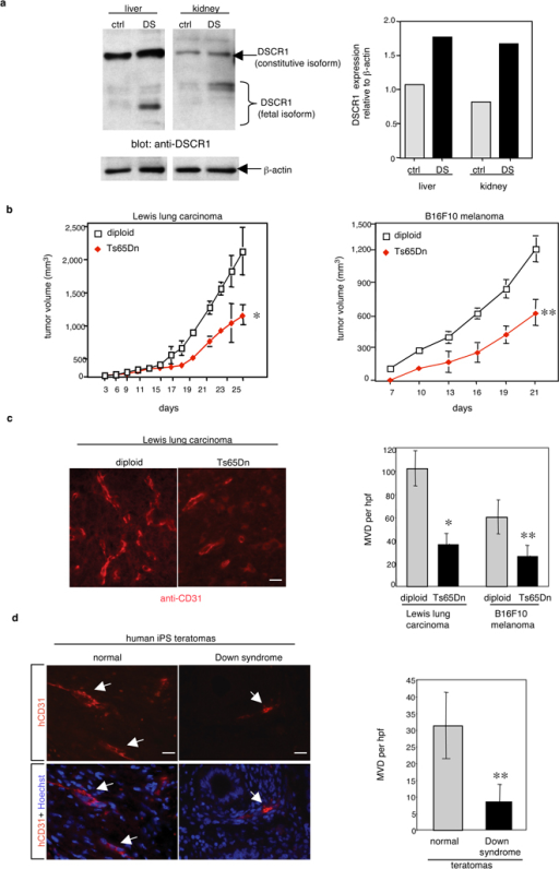 Dscr1 expression is upregulated in Down syndrome tissues and tumor angiogenesis is suppressed in Down syndrome models(a) Increased DSCR1 expression in human fetal Down syndrome (DS) tissues versus age-matched control (ctrl) tissues relative to β-actin. (b) Tumor growth is suppressed in the Ts65Dn Down syndrome mouse model. Values are mean ± s.e.m. n=10–12, *p<0.03; **p <0.01. (c) Microvessel density (MVD) per high-powered field (hpf) of tumors is quantified by anti-CD31 immunofluorescence. Bar, 20 µM. Values are mean ± s.e.m. *p <0.02; **p<0.01. (d) Angiogenesis in tumors from induced pluripotent stem cells (iPS) isolated from Down syndrome or cytogenetically normal cells was quantified by human specific anti-CD31 immunofluorescence. Arrows, hCD31-positive vessels. Values are mean ± s.e.m. n=3–6, **p<0.01.