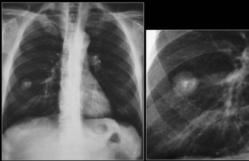 Figure 0003: A chest radiograph shows a fairly well-defined PN in the ...