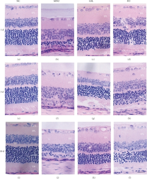 The H-E staining photographs of rat retina treated with Ganoderma spores lipid (GSL) and fish oil (FO). (a, e, i) Normal control (NC) group on days 1, 3, and 10, respectively; (b, f, j) N-methyl-N-nitrosourea (MNU) treated group on days 1, 3, and 10, respectively; (c, g, k) GSL group on days 1, 3, and 10, respectively; (d, h, l) FO group on days 1, 3, and 10, respectively. A single systemic administration of MNU evoked progressive retinal lesions. GSL and FO treatment caused inhibition of retinal lesions induced by MNU. GCL, ganglion cell layer; IPL, inner plexiform layer; INL, inner nuclear layer; ONL, outer nuclear layer; OS, outer segment. Scale bar, 40 μm.