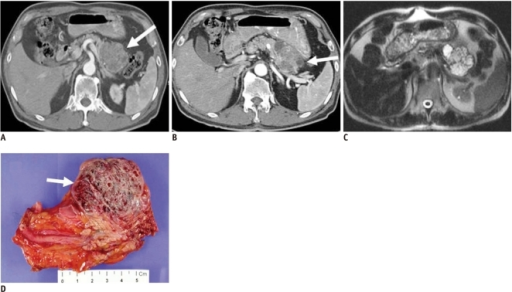 66-year-old man with microcystic serous cystadenoma manifesting as microcystic lesion.A. Contrast-enhanced transverse CT during arterial phase shows hypervascular mass (white arrow) in tail of pancreas. It appears as solid lesion on CT, owing to innumerable cysts and fine septa. B. Note cystic portion in periphery of tumor (white arrow). C. Axial T2-weighted image reveals microcystic mass. D. Gross specimen shows multilocular, well-defined bulging mass containing multiple tiny cystic spaces and sanguineous clear fluid (white arrow), which are confirmed as microcystic serous cystadenoma.