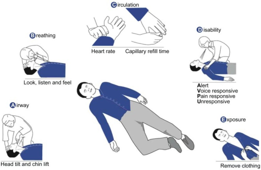 Initial assessment and treatment with the Airway, Breathing ...