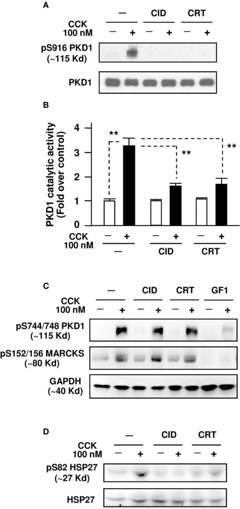 "CID755673 and CRT0066101 selectively inhibit supramaximal dose CCK-induced PKD/PKD1 activation in pancreatic acinar cells. Isolated pancreatic acini were pre-incubated for 3 h with CID755673 (CID), CRT0066101 (CRT), or GF 109203X (GF1), followed by incubation with 100 nM CCK for 30 min. The acini were collected and lysed. (A) PKD/PKD1 autophosphorylation at its Ser916 (pS916 PKD1) was determined by Western blot analysis of the acinar lysates using anti-phospho-Ser916 PKD/PKD1 antibody, as described in Section ""Experimental Procedures."" Blots were stripped and re-probed with PKD1 C-20 antibody for loading control. Shown are representative blots from at least three independent experiments. (B) PKD/PKD1 was immunoprecipitated from the acini lysate with PKD1 C-20 antibody and the PKD/PKD1 catalytic activity was measured with in vitro kinase assay as described in Section ""Experimental Procedures."" Activity values were normalized by the control without CCK stimulation. Results are means ± SE (n = 3) for each condition. **P < 0.01 comparing the control versus CCK alone without inhibitor pretreatments, and comparing CID + CCK or CRT + CCK versus CCK alone, as indicated with dash lines. (C) Western blot analyses of the acini lysates with anti-phospho-Ser744/748 PKD or anti-phospho-Ser152/156-MARCKS antibodies. Blots were stripped and re-probed with GAPDH antibody for loading controls. (D) Western blot analyses of the acinar lysates with anti-phospho-Ser82 Hsp27 antibodies. Blots were stripped and re-probed with Hsp27 antibody for loading controls."