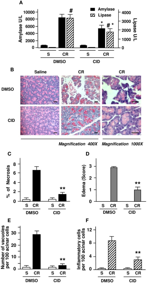 "PKD/PKD1 inhibition by CID755673 ameliorates necrosis and other pancreatitis parameters in cerulein-induced pancreatitis. Rats received intraperitoneal (IP) injection of CID755673 (CID, 15 mg/kg) or same volume of vehicle DMSO. At 60 min after the pretreatment, pancreatitis was induced by four hourly IP injections of cerulein (CR), as described in Section ""Experimental Procedures."" Control rats received saline (S). The blood and pancreas were harvested in 4 h after the first injection of cerulein for the following measurements. (A) Serum amylase and lipase levels were measured. (B) H&E staining of pancreatic tissue sections from the experiments. Each image is representative of at least 6 rats with similar results at each condition. Bars represent 20 μm. (C) Necrosis was measured on H&E stained pancreatic tissue sections. Cells with swollen cytoplasm, loss of plasma membrane integrity, and leakage of organelles into interstitium were considered necrotic. For necrosis measurement and the quantifications of following other histological measurements, a total of at least 2000 acinar cells were counted on tissue sections from each animal and three to five animals each condition were counted. (D) Pancreatic edema grading was made from 1 to 3 on the H&E stained tissue sections with Schoenberg grading system as described in Section ""Experimental Procedures.""(E,F) Number of vacuole and inflammatory cell infiltration were counted on these H&E stained pancreatic tissue sections and expressed as percentage of total acinar cells. Graphs (A,C–F) show means ± SE (n = 4) for each condition. **P < 0.01 or *P < 0.05 versus cerulein alone without inhibitor pretreatments as indicated."