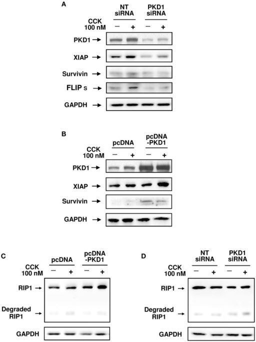 Effects of genetic down- or up-regulation of PKD/PKD1 expression on protein levels of IAPs and RIP1. AR42J cells were transfected with pooled four PKD1 siRNA duplexes or pcDNA3-PKD1 vector. Control cells received non-target (NT) siRNAs or empty vector (pcDNA3). Three days after transfection, the cells were incubated in serum-free F-12K medium for 1 h and then incubated for 5 h with or without 100 nM CCK. (A,B) Western blot analysis of the transfected AR42J cell lysates using antibodies against PKD1 C-20, XIAP, survivin, and FLIP to show effects of down- or up-regulation of PKD/PKD1 expression on the protein levels of these IAPs. Blots were re-probed for GAPDH to confirm equal protein loading. Shown are representative blots from at least three independent experiments. (C,D) Western blot analysis of the cell lysates using RIP1 antibody to detect the effect of up-regulation or knockdown of PKD/PKD1 expression on RIP1 expression and cleavage. The membranes were reblotted with GAPDH antibody to verify equal loading. Shown are representative blots from three independent experiments.