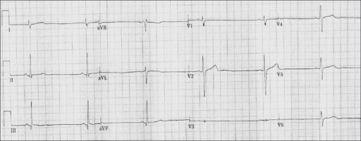 Electrocardiogram (EKG) of the patient 2