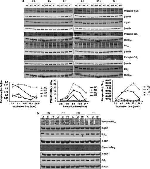 JNK-dependent phosphorylation of c-jun, Bcl2 and BclXL is induced by taxol but decreased after long incubation time under hypoxia. MDA-MB-231 cells were incubated under normoxia (N) or hypoxia (H) without (C) or with taxol (T) at 50 μM. (a) After 2, 4, 8, 16 and 24 h of incubation, c-jun, Bcl2, BclXL, phospho-c-jun, phospho-Bcl2 and phospho-BclXL were detected in total cell extracts, obtained with a phospho-protein-specific lysis buffer, by western blotting analysis, using specific antibodies. β-actin was used to assess the total amount of proteins loaded on the gel. The graphs below represent the quantification of phospho-c-jun, phospho-Bcl2 and phospho-BclXL abundance normalized to β-actin relative to c-jun, Bcl2 and BclXL total abundance normalized to β-actin. (b) MDA-MB-231 cells were untransfected (X) or transfected with 25 nM of JNK1 and 25 nM of JNK2 siRNA (SI) or negative control RF siRNA at 50 nM (RF) for 24 h. The transfection media were removed and replaced by culture media for 24 h. Cells were then incubated under normoxia (N) or hypoxia (H) for 16 h, without (C) or with taxol (T) at 50 μM. Bcl2, BclXL, phospho-Bcl2, phospho-BclXL were detected in total cell extracts, obtained with a phospho-protein-specific lysis buffer, by western blotting analysis, using specific antibodies. β-actin was used to assess the total amount of proteins loaded on the gel