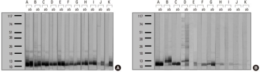 Changes in specific IgE binding components, as determined by IgE immunoblot, using the 98 and 09 extracts in group I (A) and II (B) subjects. a, 1998 year Hop J pollen extracts; b, 2009 year Hop J pollen extracts.