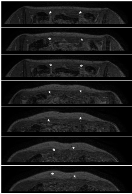 Transverse slices demonstrate the vascular bundle dorsal to the rectus muscle.Transverse source images of equilibrium-phase dataset in the same patient. Images are from caudal (top panel) to cranial (bottom panel), and clearly demonstrate the vascular bundle dorsal to the rectus muscle shortly after branching off the external iliac artery (asterisks in top three panels). The perforating branches can easily be followed when traversing the rectus muscle to the point where they arise in the subcutaneous fat (asterisks in lower 4 panels).