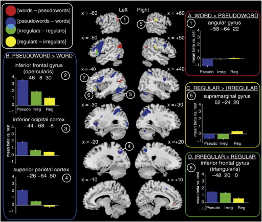 Brain regions showing differential activation for contrasts of interest in Model 1, which did not include an RT covariate. The left and right hemisphere slices show whole-brain activations at p < .001 voxel-wise uncorrected and p < .05 FWE cluster corrected for 22 participants. Red = [words − pseudowords], blue = [pseudowords − words], green = [irregular − regular words], yellow = [regular − irregular words], cyan = overlap between [pseudowords − words] and [irregular − regular words]. Panels contain plots showing activity (mean BOLD parameter estimate, arbitrary units) at peak voxels from contrasts of interests for each item type: blue = pseudowords, green = irregular words, yellow = regular words. All error bars in this and subsequent figures use standard error appropriate for within-participant designs (Loftus and Masson, 1994). Contrasts of interest represented by each panel are as follows: A) [words − pseudowords], B) [pseudowords − words], C) [irregular − regular words], D) [regular − irregular words].