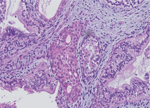 Gland-like structure with acinar epithelium resembling pancreatic tissue. Cystic formation embedded in a loose immature stromal tissue.