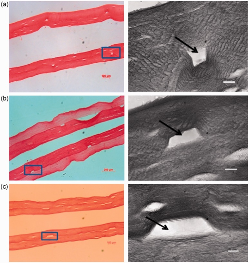Once the rectangular profile groove had been formed in the first layer of compressed collagen a second layer was set over the top and it too was compressed in its turn, to produce a flat 'roof' to the groove, forming a closed channel. Representative histological images of these open channels are shown in pair (a), (b) (c) (transverse view, Sirius Red staining). Both the moulded and roofing layers were set as 10.6 mm deep gels. (a) 25 × 75 μm template, (b) 50 × 75 μm template, (c) 100 × 75 μm template. Solid arrows indicate the open area of the channel.