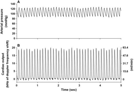 High‐fidelity 5‐sec original recordings of arterial pressure (panel A) and ascending aortic blood flow (cardiac output, panel B) during the daytime resting period from a chronically instrumented mouse are shown. Units for cardiac output (panel B) are expressed in kHz (left y‐axis) and mL/min (right y‐axis).