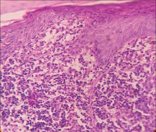 Intense upper dermal infiltrate composed primarily of plasma cells (H and E, ×100)