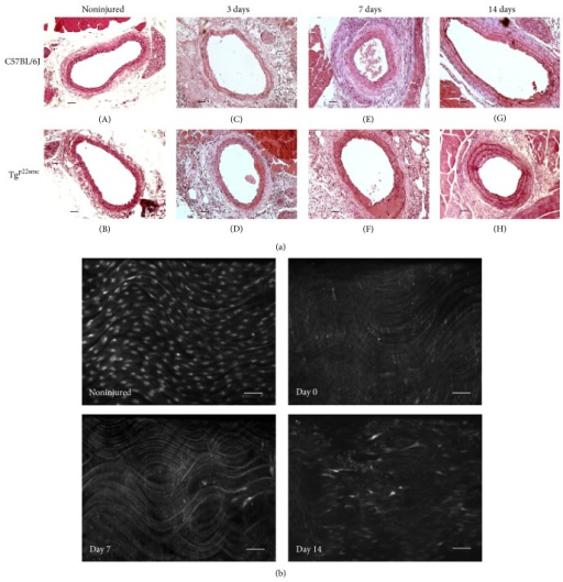 (a) Hematoxylin and eosin stained cross sections of carotid arteries harvested at selected time points following injury in C57BL/6J and Tgp22smc mice. Representative sections from noninjured arteries ((A) and (B)) and carotid arteries 3 days after injury ((C) and (D)), 7 days after injury ((E) and (F)), and 14 days after injury ((G) and (H)) are shown. (b) Representative luminal images of fluo-4 treated sections of isolated carotid artery segments from a noninjured artery and injured arteries at days 0, 7, and 14 days following vascular injury. All images were obtained at a magnification of 200x and the scale bar is equal to 20 μm.