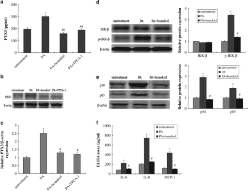 Honokiol regulated the expression of PTX3 and inflammatory response in PA-induced HUVECs model. PTX-3 levels from the enzyme-linked immunosorbent assay (ELISA) (a), western blotting (b) and reverse-transcriptase PCR (RT-PCR) (c) in HUVECs after treatment with vehicle, 0.5 mM PA, PA plus 10 μM honokiol or PA plus an inhibitor of IKK-2 (TPCA-1, 30 μM) for 48 h. (d) Protein expression of IkB and p-IkB in HUVECs after treatment with vehicle, 0.5 mM PA or PA plus 10 μM honokiol for 48 h. (e) Protein expression of p50 and p65 in HUVECs after treatment with vehicle, 0.5 mM PA or PA plus 10 μM honokiol for 48 h. (f) IL-6, IL-8 and MCP-1 levels measured by the ELISA assay in HUVECs after treatment with vehicle, 0.5 mM PA or PA plus 10 μM honokiol for 48 h. Data are mean±s.d., n=3 in each group. *P<0.05, versus untreated group. #P<0.05 and ##P<0.01, versus 0.5 mM PA treatment group.