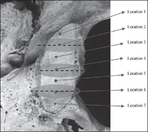The location of intra and extracranial orifices of hypoglossal canal