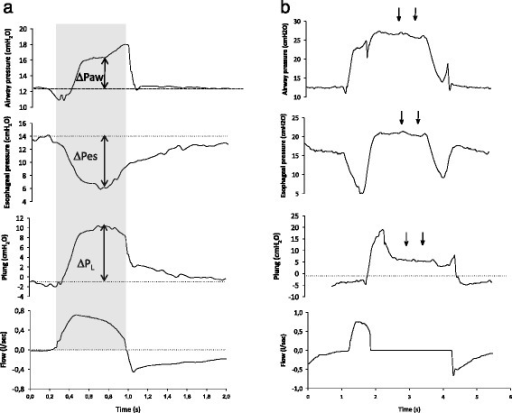 Individual examples of airway and esophageal pressure tracings of pressure support breaths sampled during regular tidal ventilation (a) and one prolonged inspiratory hold (b). a For each selected breath, from the airway (ΔPaw) and esophageal (ΔPes) pressure swings we calculated the transpulmonary lung pressure (Plung) swings (ΔPL) as changes from the end expiration (dotted lines) at two time points of interest: the point of maximum ΔPL and the mean over inspiration (gray rectangular area). b Following an inspiratory hold, when the patient relaxes the inspiratory muscles, a plateau is seen in airway and esophageal pressure (arrows), whose differences from the end-expiratory level represent the elastic recoil pressure of the respiratory system and of the chest wall, respectively