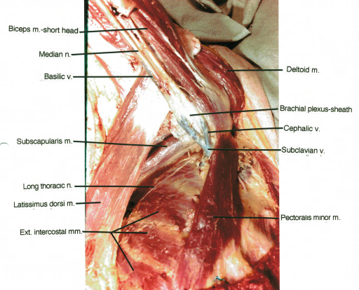 biceps muscle; median nerve; basilic vein; subscapularis muscle; long thoracic nerve; latissimus dorsi muscle; external intercostal muscle; deltoid muscle; brachial plexus sheath; cephalic vein; subclavian vein; pectoralis minor muscle