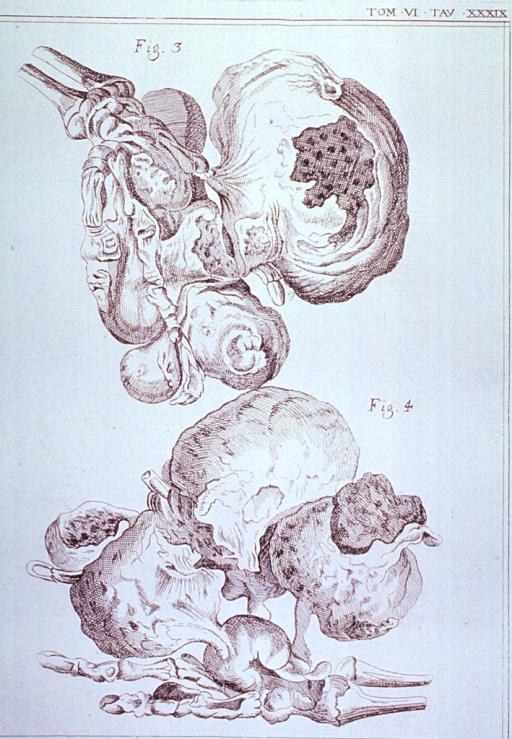 <p>Two views of a hand consumed by a tumor; the fleshy tissue of the hand has been removed to provide a view of the interior nature of the tumor within.</p>