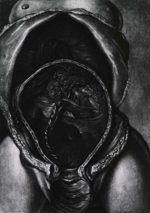 <p>View of exposed uterus showing placenta and umbilical cord.</p>