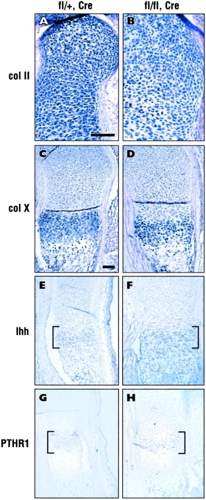 Normal differentiation of ILK-deficient chondrocytes. In situ hybridization of growth plate from control (fl/+, Cre, A, C, E, and G) or mutant (fl/fl, Cre, B, D, F, and H) E16.5 mouse femur. (A and B) Collagen type II (col II), antisense probe. (C and D) Collagen type X (col X), antisense probe. (E and F) Ihh, antisense probe. (G and H) PTHR1, antisense probe. The zone of expression is bracketed in E–H. Note that these markers of differentiation exhibit the same pattern of expression in control and mutant littermates. Background staining with sense probes was undetectable (not depicted). Bars, 100 μm.