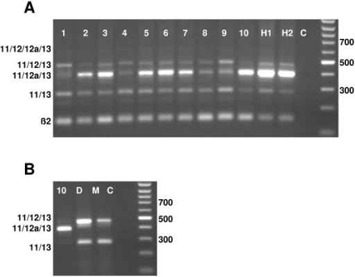 Expression of Mtss1 exons 11–13 in human medulloblastomas and medulloblastoma derived cell lines. A: Lanes 1–5: classical medulloblatoma samples D1198, D1127, D1049, D1185 and D963, respectively; lanes 6–10: desmoplastic medulloblastoma samples D86, D978, D82, D1401, and D1062; lanes H1, H2: fetal human cerebellar samples R1626 and R1628. Lane C is a negative control. The band indicative of the splice variant containing exons 11/12a/12/13 is hardly visible in this reproduction. B: In DAOY (D) and D-283Med medulloblastoma cell lines, bands representing the splice variants 11/12/13 and 11/13 predominate. Note absence of the band indicative of the splice variant 11/12a/13, which should comigrate with the prominent band of sample 10 shown for comparison. Lane C is a negative control.