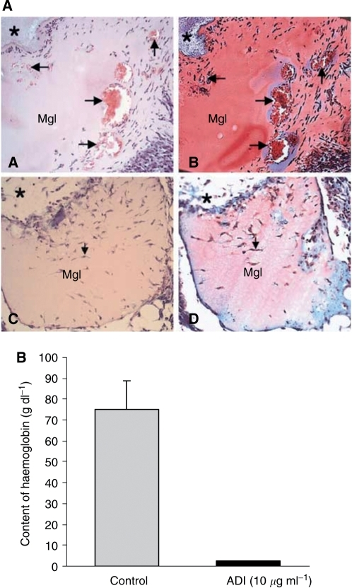 Inhibition of angiogenesis by ADI in vivo mouse Matrigel assay. Matrigel (0.4 ml) containing 50 ng ml−1 of bFGF and 60 U ml−1 of heparin in combination with or without 0.46 U ml−1 ADI was subcutaneously injected near the abdominal midline of the mice. (A) Histological analysis of Matrigel implants (for experimental procedures, see Materials and methods). Matrigel without ADI (A and B) showed formation of blood vessels with various sizes (arrows) forming in the Matrigel. Inside the vessel, red blood cells were observed (red colour in the vessel). However, ADI treatment clearly inhibited blood vessel formation (C and D). *Indicates connective tissues surrounding Matrigel implants. (A and C: haematoxylin–eosin staining, B and D: Masson-Trichrome staining). Original magnification x100. (B) Haemoglobin content in the Matrigel was measured with Drabkin reagent kit 525 to evaluate blood within the vessels formed 5 days after injection, calibrated against a known amount of haemoglobin in parallel. ADI potently inhibited growth factor-induced angiogenesis by 97%. Each value represents the mean±s.e.of five ADI-treated animals and seven per control group.