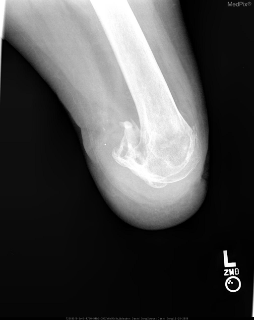 Preoperative lateral radiograph of left knee shows through-knee-amputation with irregularly bordered heterogeneous ossified density juxtaposed to the posterior aspect of the distal femur.  These ossifications extend through the soft tissues and are consistent with heterotopic ossification.  The left femur shows normal bone density.  The remainder of the soft tissues appear normal.