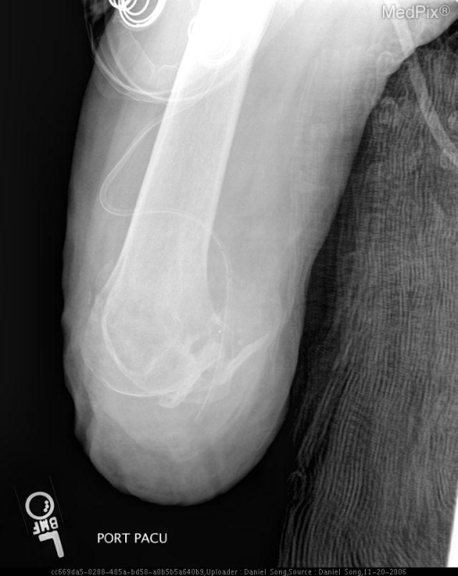 Postoperative lateral radiograph of left knee shows through-knee-amputation with small heterogeneous focal area of ossified densities posterior to the distal femur.  The posterior aspect of the distal femur also shows focal area of ossified densities.  A percutaneous drain is in place.