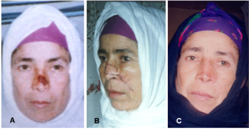 A 47 years woman presented with BCC on the left side of the nasal skin, to whom a pedicled LAOMC flap was used to reconstruct the nasal defect. 4a: preoperative. 4b: two weeks postoperative. 4c: two months postoperative.