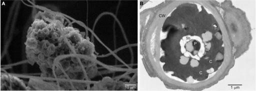 Scanning and transmission electron micrographs of the cave Dunaliella. (A) SEM micrograph of a group of cells of cave Dunaliella attached to the spider web's silk threads. (B) TEM micrograph of a cave Dunaliella cell. CW, cell wall; C, chlorosplast; P, pyrenoid; Sb, starch bodies.