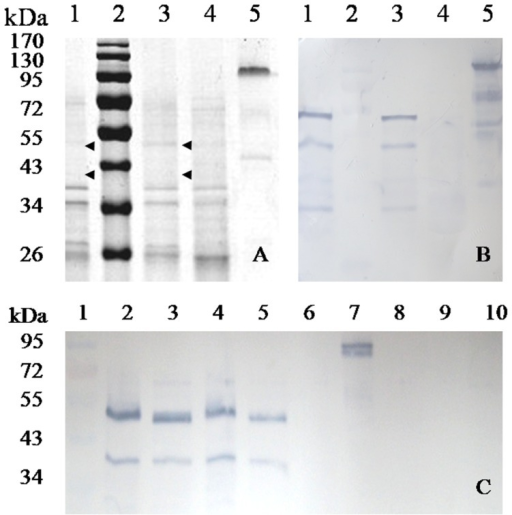 Analysis of recombinant MAN5AS from two transgenic maizes.A) SDS–PAGE. B) Western blot. Lane 1 and 3, the transgenic maize; lane 2, the protein molecular markers; lane 4, the non-transgenic Zheng58; lane 5, the purified MAN5A-SST produced in P. pastoris. C) Specific promoter analysis. Lane 1, the protein molecular markers; lane 2 and 4, the protein isolated from seeds of T042-5 and T041-20; lane 3 and 5, the two transgenic plant proteins pretreated with Endo H; lane 6, the protein isolated from seeds of non-transgenic Zheng58; lane 7, the purified MAN5A-SST produced in P. pastoris; lane 8–10, the proteins collected from root, stem and leaf tissue of a transgenic plant.