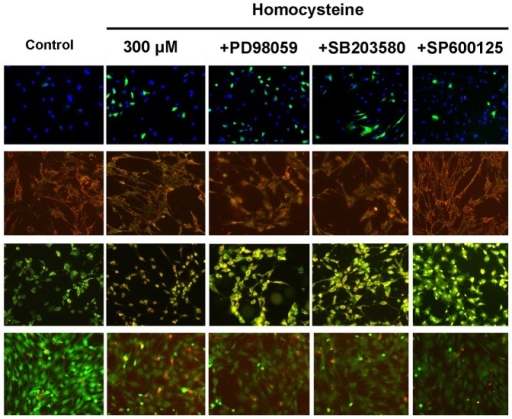 JNK signal is involved in the apoptosis of BMSCs induced by homocysteine.JNK specific inhibitor effectively attenuated the apoptosis induced by homocysteine 300 µM in BMSCs. However, p38 and ERK specific inhibitors did not affect homocysteine-induced apoptotic morphological changes in BMSCs.